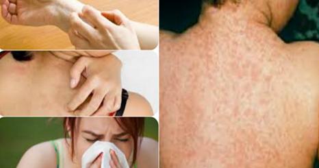 Allergies.jpg