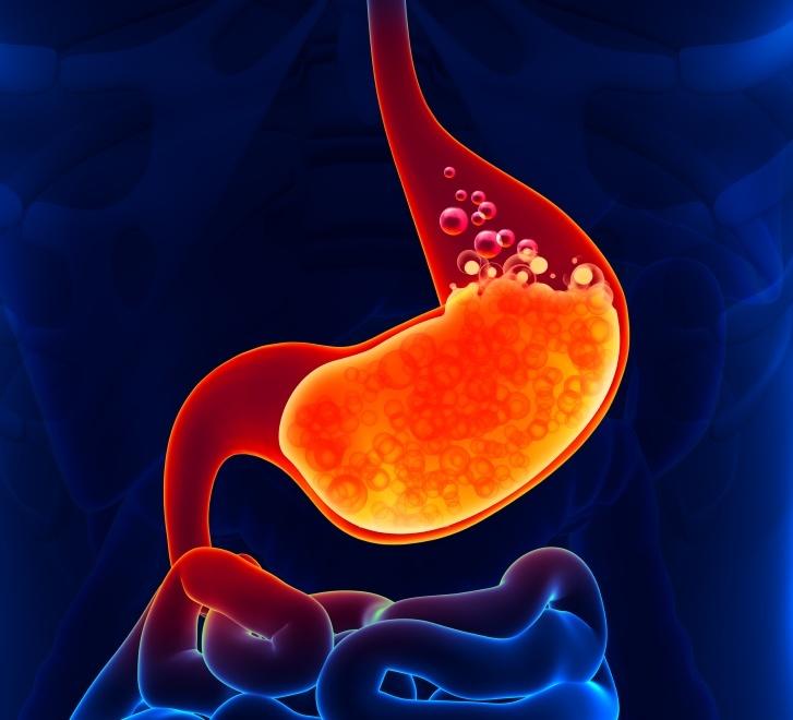 Gastric Pain, acidity.jpg